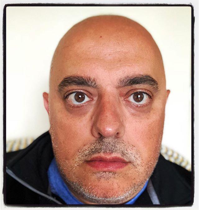 Selfie. 🤳🏻 Still bald.